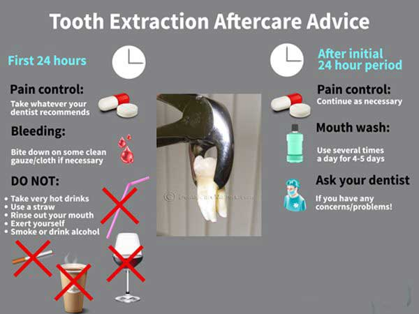 how long should i have pain after wisdom tooth extraction
