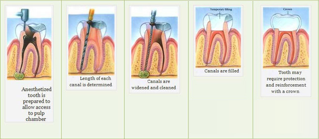 Root canal during pregnancy
